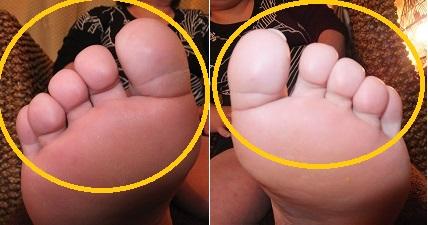 足指の形、方向、長さ